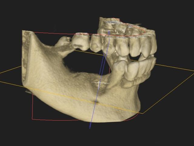 手術が『健康な口腔内環境に』『適切な位置に』『正確で緻密に』施されている