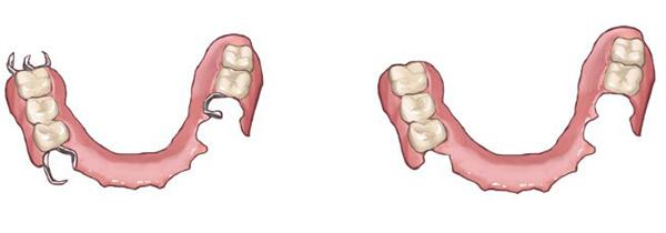 一般的な入れ歯