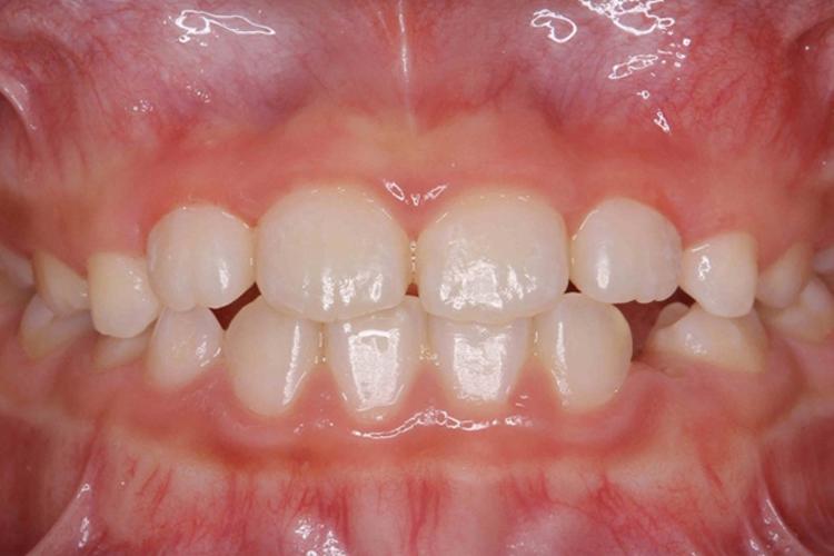 下顎の発育を正常化 治療後