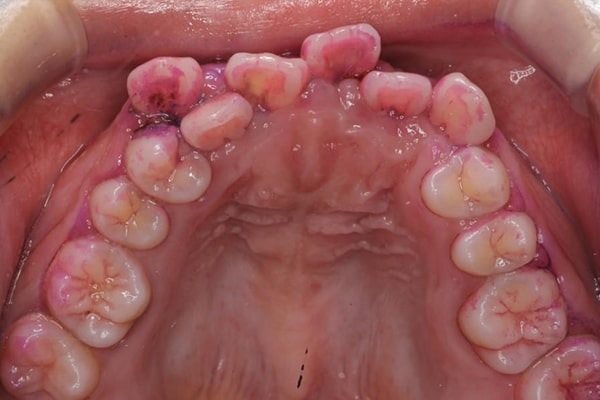 虫歯になりやすくなる