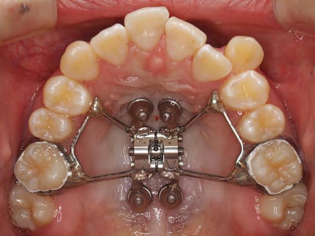 ②側方拡大・後方拡大(全体の歯並びを外側に)