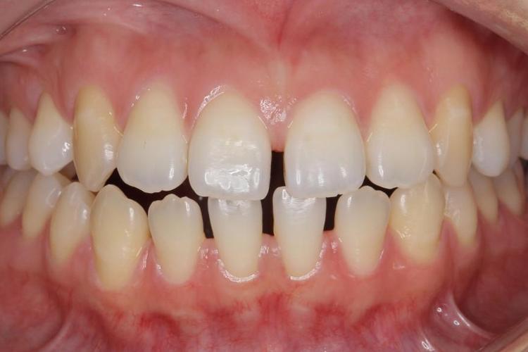 すきっ歯のケース