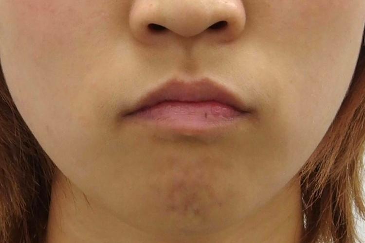 叢生(そうせい)-でこぼこ・八重歯- 治療前