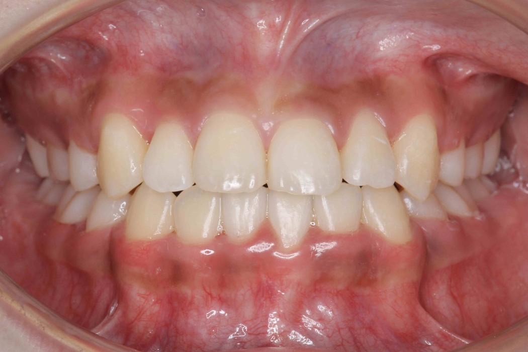 叢生(そうせい)-でこぼこ・八重歯- 治療後