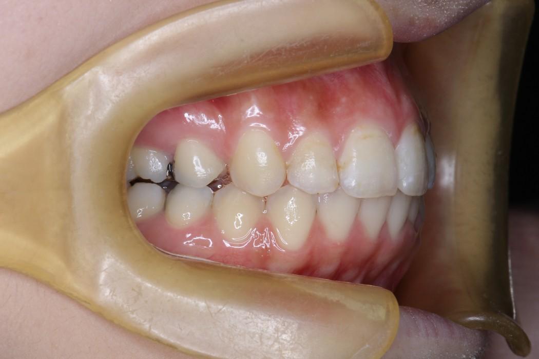 上顎前突(じょうがくぜんとつ)-出っ歯- 治療後