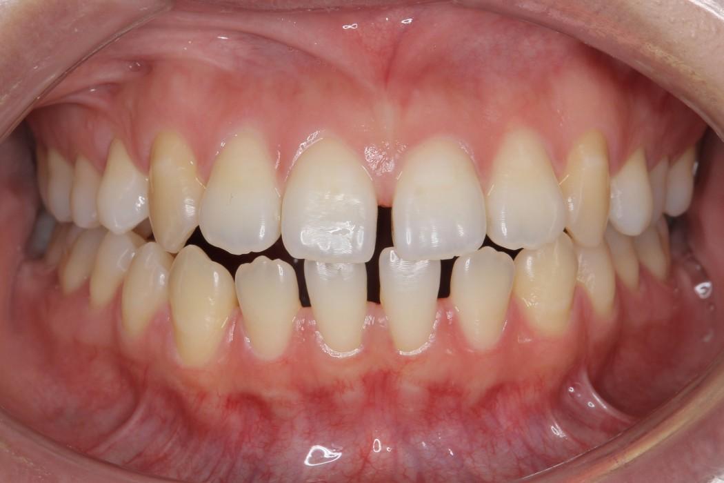 空隙歯列弓(くうげきしれつきゅう)-すきっ歯- 治療前