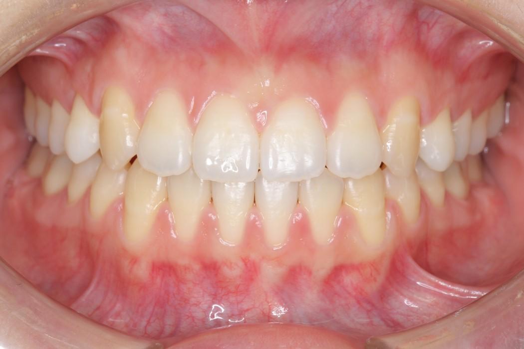 空隙歯列弓(くうげきしれつきゅう)-すきっ歯- 治療後
