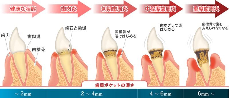 歯周病の進行具合