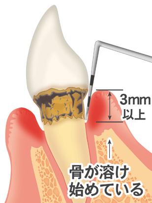慢性歯周炎