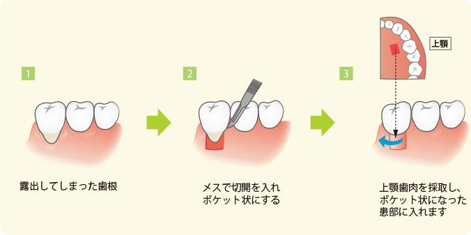 歯ぐき移植術