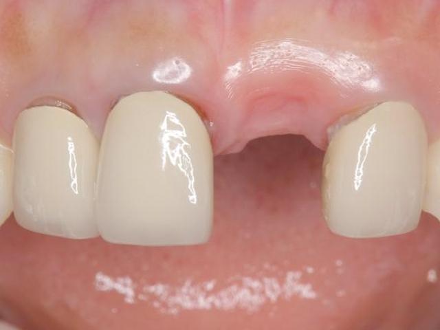 欠損した前歯