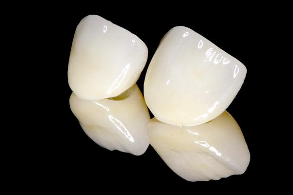 オールセラミック治療(審美歯科)