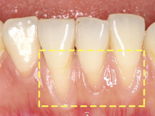 歯周外科治療 治療前