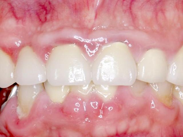 歯茎が腫れているケース