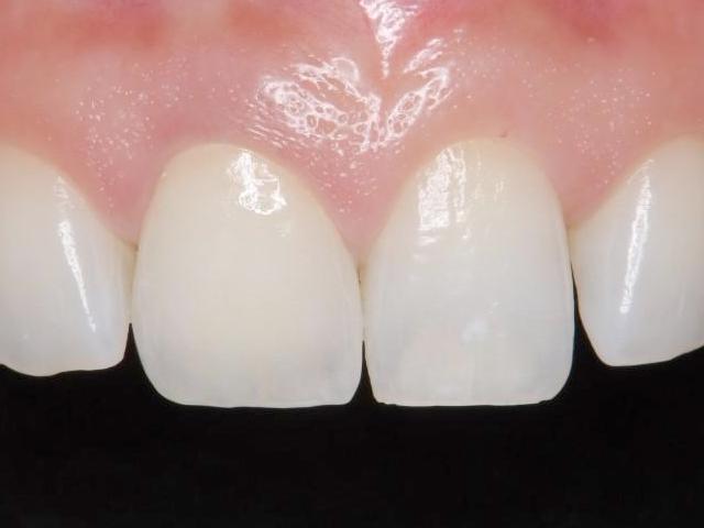 天然歯と見分けがつかない精密治療