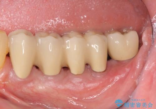[歯周病治療]  再生療法で歯を残す②の症例 治療後