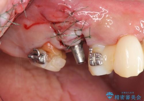 [天然歯の遠心移動]  適切なインプラントー歯牙距離を確保するの治療中