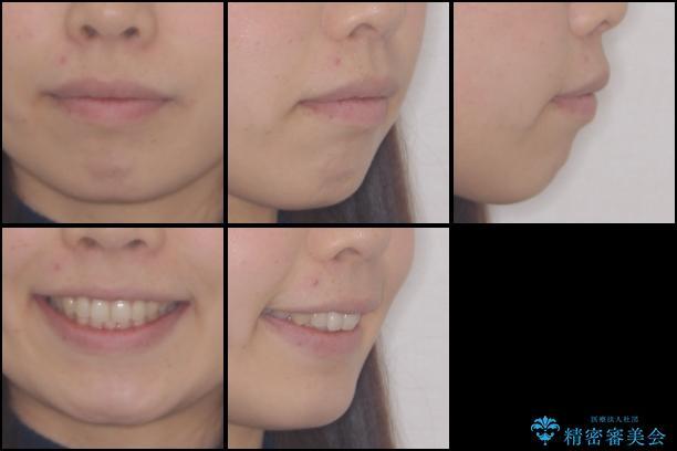 出ている前歯を引っ込めたい インビザラインによる矯正治療の治療後(顔貌)