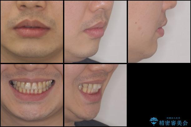 上下前歯のでこぼこをきれいに インビザラインによる歯列矯正の治療後(顔貌)