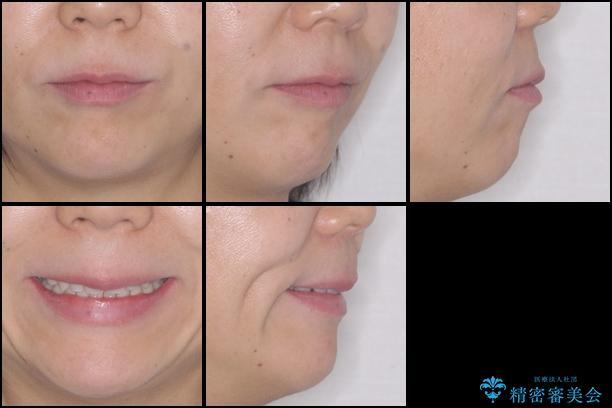 出っ歯を治したい メタル装置による抜歯矯正の治療後(顔貌)