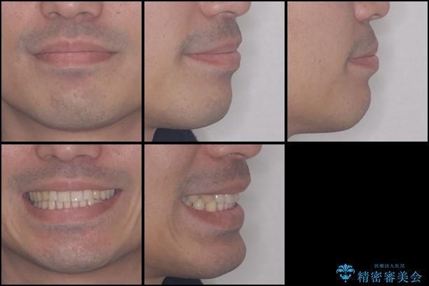 インビザラインによる矯正治療と銀歯の審美治療の治療後(顔貌)