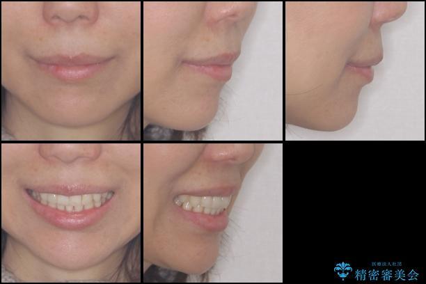 インビザラインによる再矯正治療の治療後(顔貌)