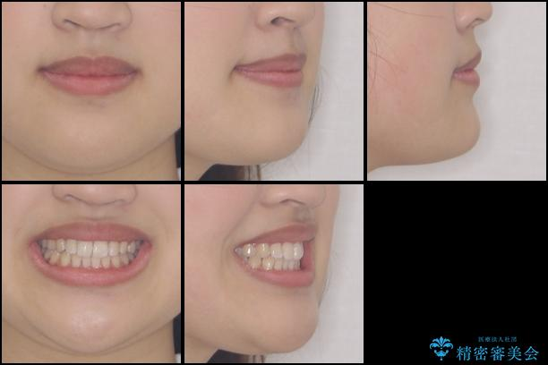 ワイヤー矯正とマウスピース矯正を併用して、短期間で歯列矯正の治療後(顔貌)