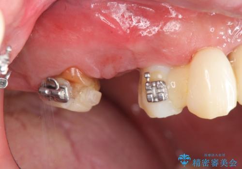 [天然歯の遠心移動]  適切なインプラントー歯牙距離を確保するの症例 治療前