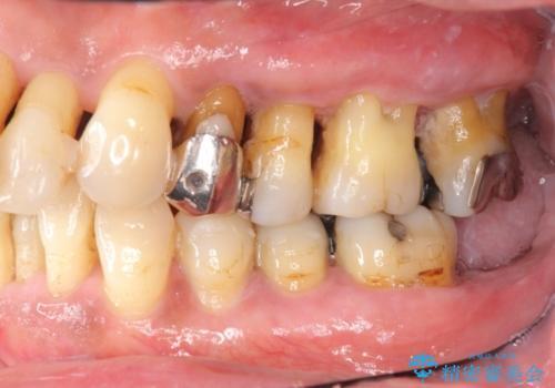 [歯周病治療]  再生療法で歯を残す①の症例 治療前