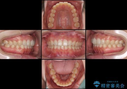 出ている前歯を引っ込めたい インビザラインによる矯正治療の治療中