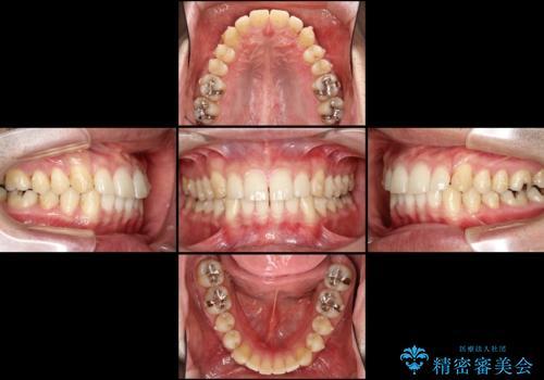 インビザラインによる矯正治療と銀歯の審美治療の治療中