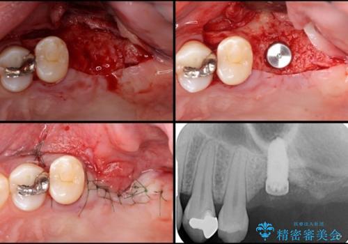 上顎臼歯部におけるインプラント治療の治療中