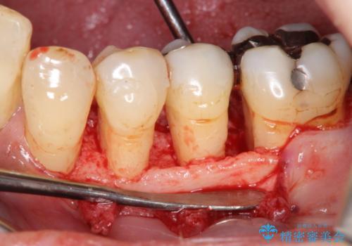 [歯周病治療]  再生療法で歯を残す①の治療中