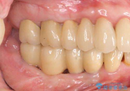 虫歯だらけの口腔内 全顎治療の治療後
