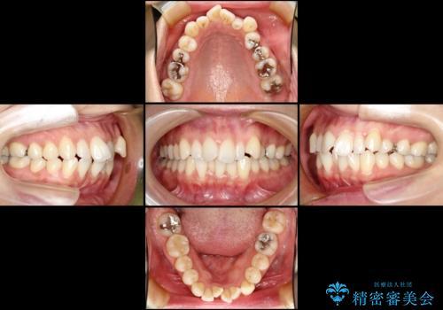 出っ歯を治したい メタル装置による抜歯矯正の治療前
