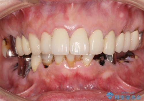 虫歯だらけの口腔内 全顎治療の症例 治療前