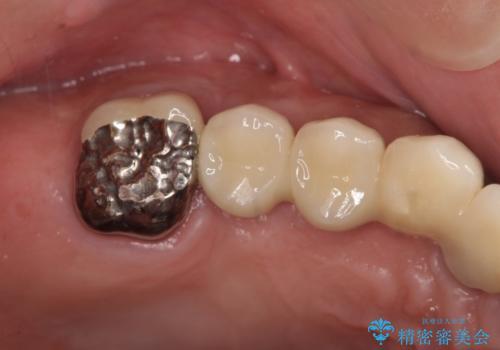 [天然歯の遠心移動]  適切なインプラントー歯牙距離を確保するの治療後
