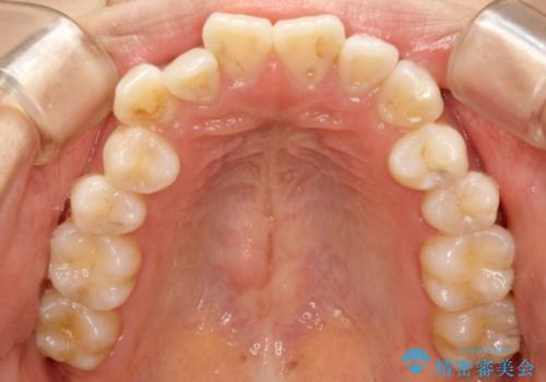 下の前歯が一本少ない ワイヤーによる出っ歯の矯正治療の治療前