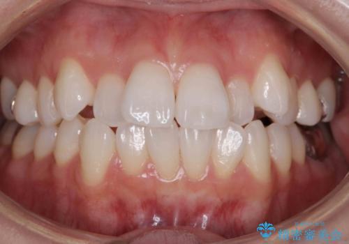 前歯を下げたい 矯正治療+つめもののやりかえの症例 治療前
