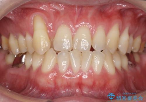 受け口、八重歯 変則的な抜歯の症例 治療前