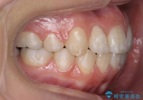 20代女性 八重歯をきれいに、前歯のがたがたの治療後