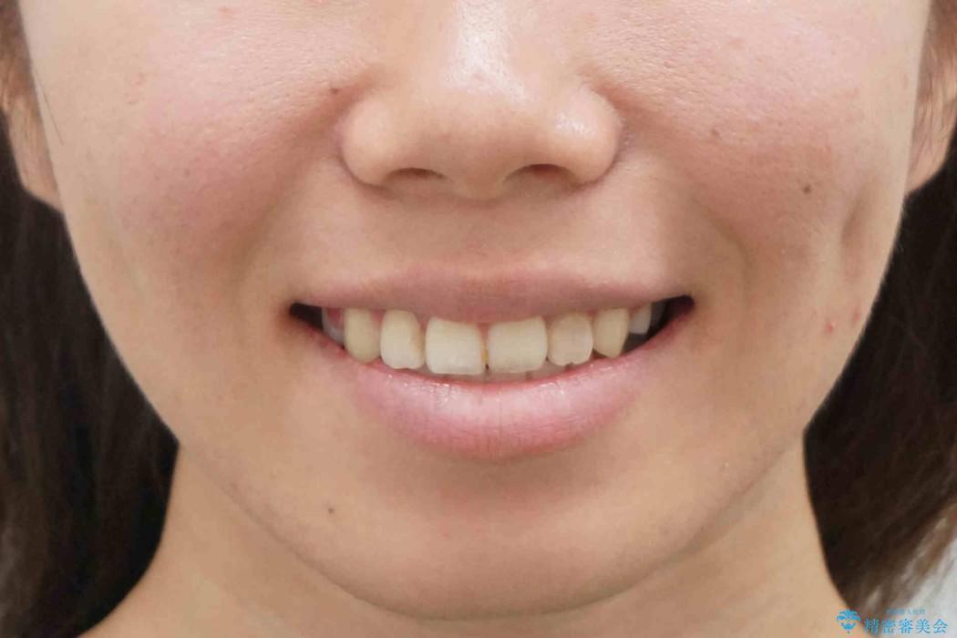 20代女性 八重歯をきれいに、前歯のがたがたの治療後(顔貌)