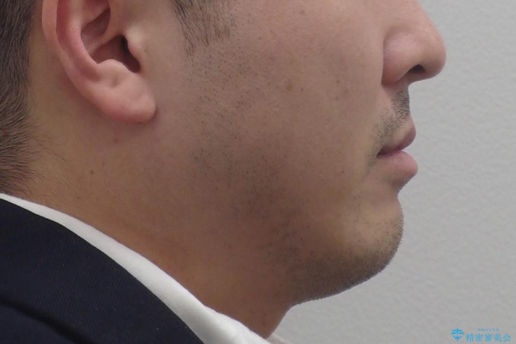 受け口、八重歯 変則的な抜歯の治療前(顔貌)
