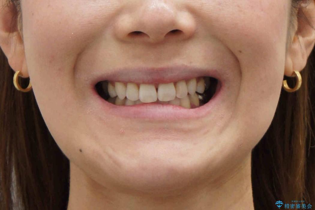 前歯を下げたい 矯正治療+つめもののやりかえの治療後(顔貌)