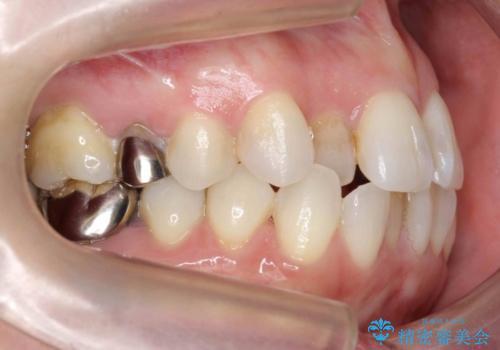 30代女性 総合歯科治療 矯正+セラミック+根管治療 の治療前