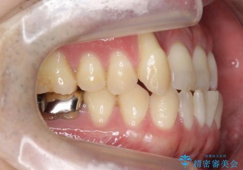 受け口、八重歯 変則的な抜歯の治療前
