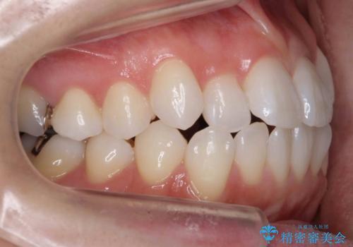 前歯を下げたい 矯正治療+つめもののやりかえの治療前