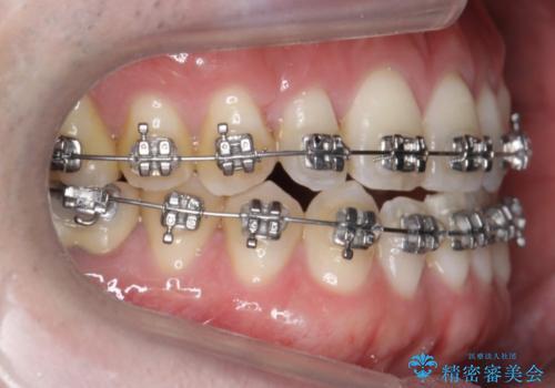 受け口、八重歯 変則的な抜歯の治療中