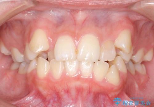 20代女性 八重歯をきれいに、前歯のがたがたの治療前