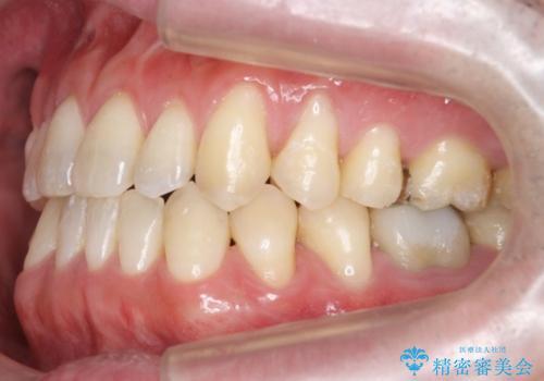 受け口、八重歯 変則的な抜歯の治療後